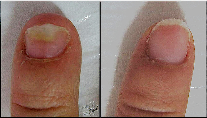 Infected Fingernails Before And After Fotana Laser Treatment